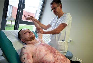 Un quemado casi integral sobrevive gracias al trasplante de la piel