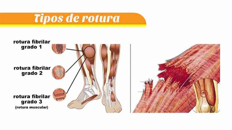 Rotura una muscular es que