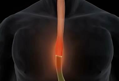 El reflujo gástrico es la enfermedad más común en gastroenterología