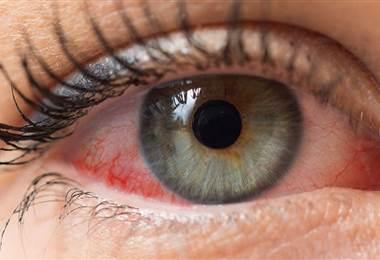 Conozca como la artritis puede llegar a afectar los ojos y la boca