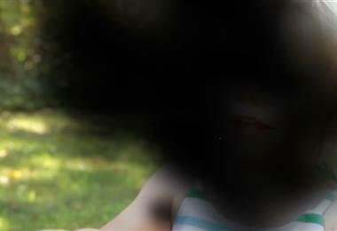 Degeneración macular es de las enfermedades más perjudiciales para la vista