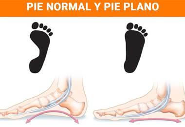 Conozca las consecuencias del pie plano