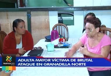Anciana fue brutalmente golpeada por sus familiares; asegura que no recibió apoyo de las autoridades
