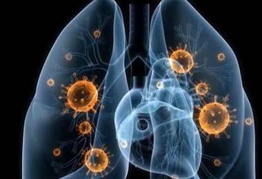 ¿Cómo se manifiesta el cáncer de pulmón y a quiénes afecta?