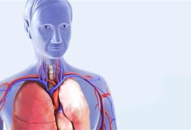 ¿Qué es la embolia pulmonar y a quiénes puede afectar?