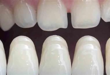 Conozca los beneficios de las carillas en los dientes para mejorar la sonrisa