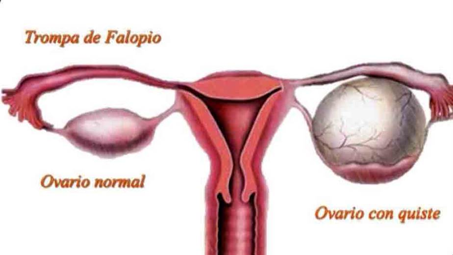 Que significa quiste simple ovario derecho