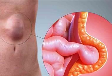 Hablamos sobre los tipos de hernias, sus causas y síntomas