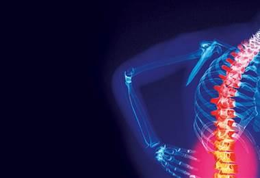 ¿Qué es la espina bífida oculta?