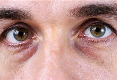 ¿Qué puede causar la visión borrosa?