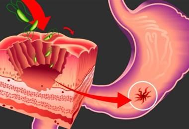 Causas y tratamientos del sangrado digestivo