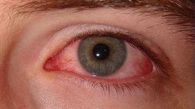 Causas del ojo rojo