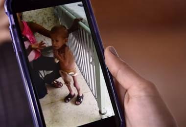 Desnutrición de niños en Venezuela. AFP.