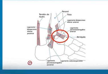 Aprenda ejercicios para recuperarse de una torcedura de tobillo