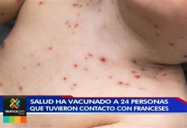 Ministerio de Salud vacunó 24 personas que tuvieron contacto con familia diagnosticada con sarampión