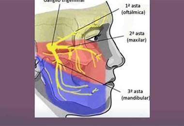 ¿Cuáles son las causas y tratamientos del dolor facial?