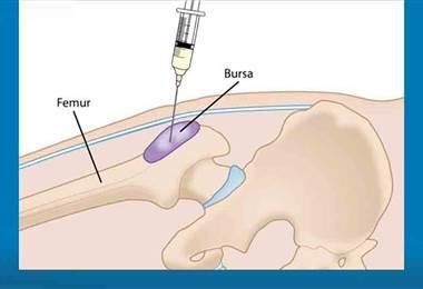 Bursitis y tendinitis son algunas de las causas de la enfermedad reumática