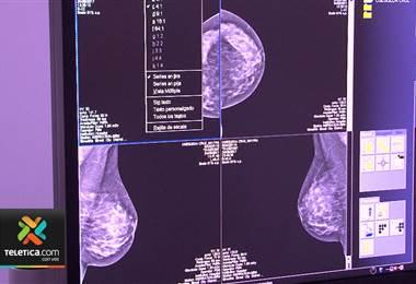 Hospital de San Carlos necesita comunicarse con tres mil mujeres que tienen una mamografía pendiente