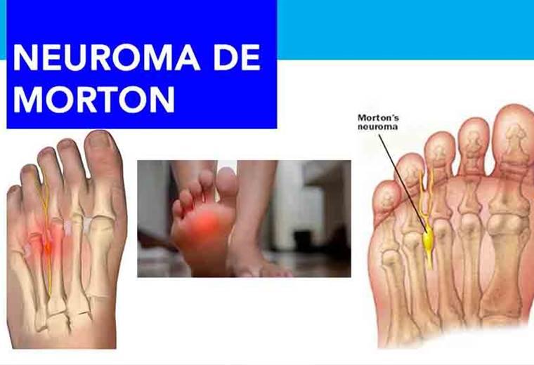como adormecer el dedo del pie