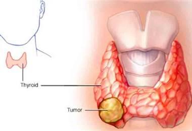 ¿Cuál es la función que tiene la tiroides?