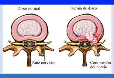 Causas comunes de dolor en el cuello