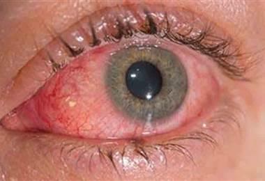 Causas y tratamientos de la conjuntivitis alérgica
