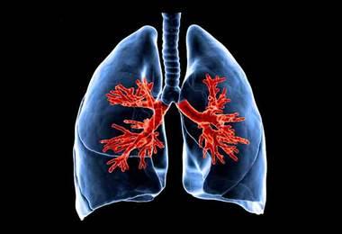 Problemas pulmonares