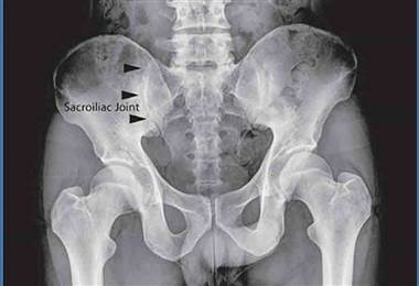 Conozca más sobre la espondilitis anquilosante