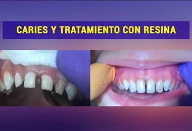 Problemas odontológicos comunes en niños