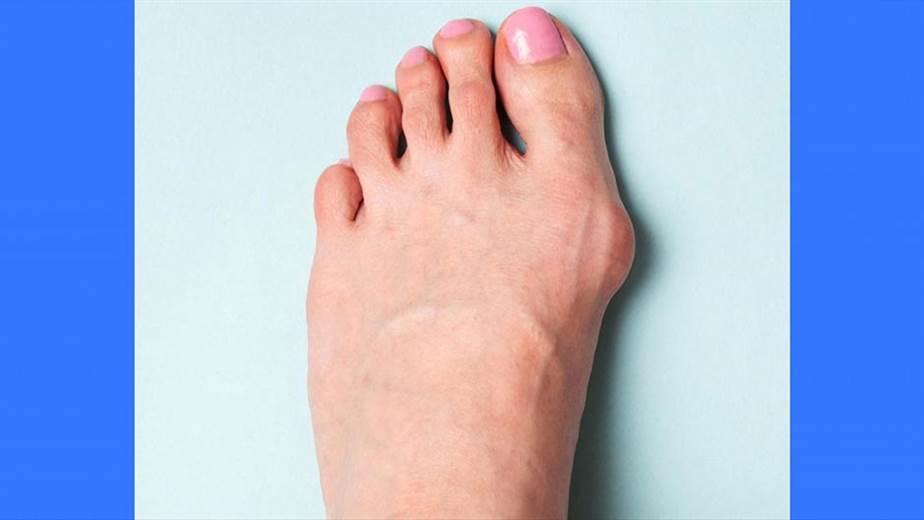 dolor en dedo gordo del pie al andar