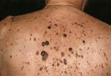 ¿Cuáles lesiones son más comunes en la piel del adulto mayor?