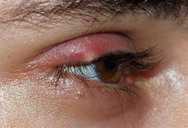 Inflamación alrededor de los ojos